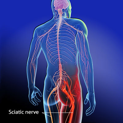 South-Florida-Chiropractic-Clinic-Sciatica-relief