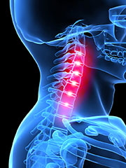 South-Florida-Chiropractic-Clinic-whiplash-relief